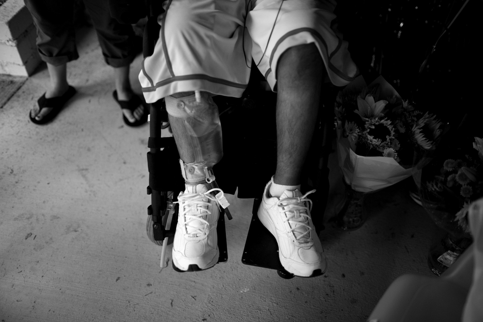 A bag of urine hangs on Isaac Salas' leg after his return home on Thursday, Aug. 4, 2011, in Cheyenne. Isaac remained on a catheter following his release from Craig Hospital. He died Saturday, Sept. 3, 2011, due to complications following a procedure to pulverize urinary tract stones that were blocking his catheter. (James Brosher/Wyoming Tribune Eagle)